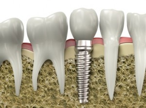 Cosmetic Dental Services In Brentwood