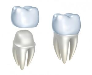 Dental Crowns Nashville