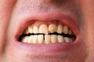 Beautify Your Smile With Porcelain Veneers In Brentwood