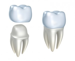Busy? Try Our Same Day CEREC Dental Crowns In Brentwood