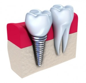 Dental Implants Can Be Cosmetic Savers For Nashville Residents