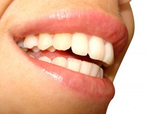 Tooth Whitening in Brentwood