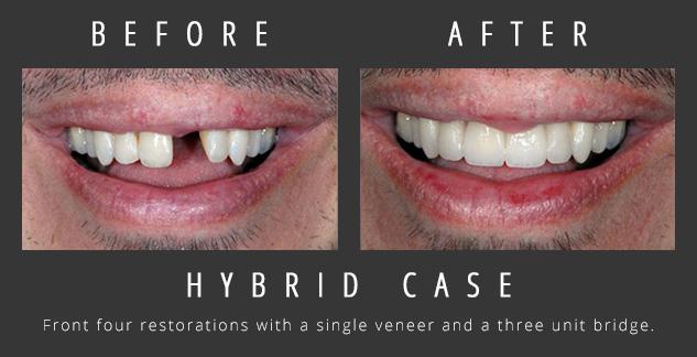 Actual restorative dentistry case involving veneers and dental bridges from Nashville dentist Dr. Dennis Wells.