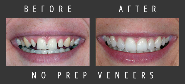 Actual patient of skilled veneers dentist Dr. Dennis Wells.