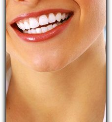 Teeth Whitening at Home vs. Professional