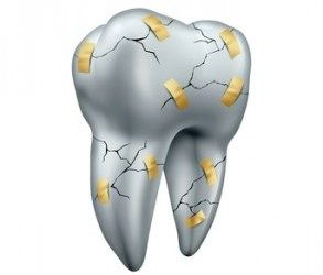 There Is More Than One Way to Crack a Tooth!
