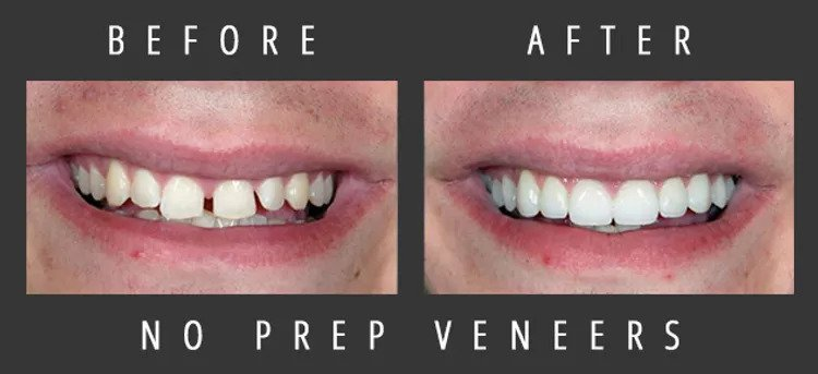 Before: crooked and unsightly teeth - After: beautiful smile created by porcelain veneers.
