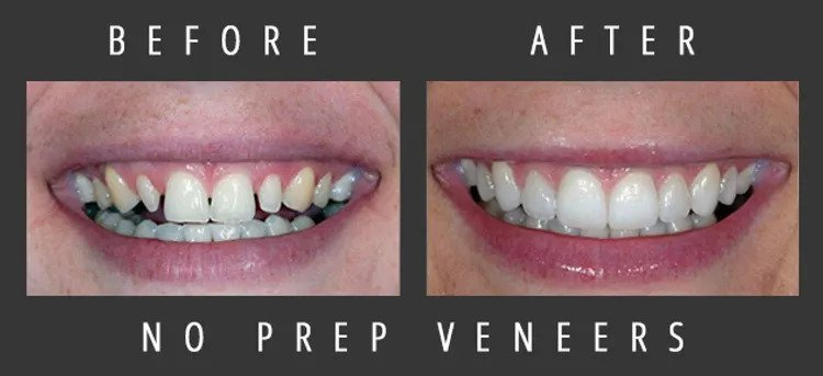 Dramatic transformation of a Nashville patient's smile using dental veneers.