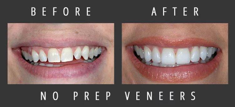 Actual patient of skilled veneers dentist Dr. Dennis Wells.